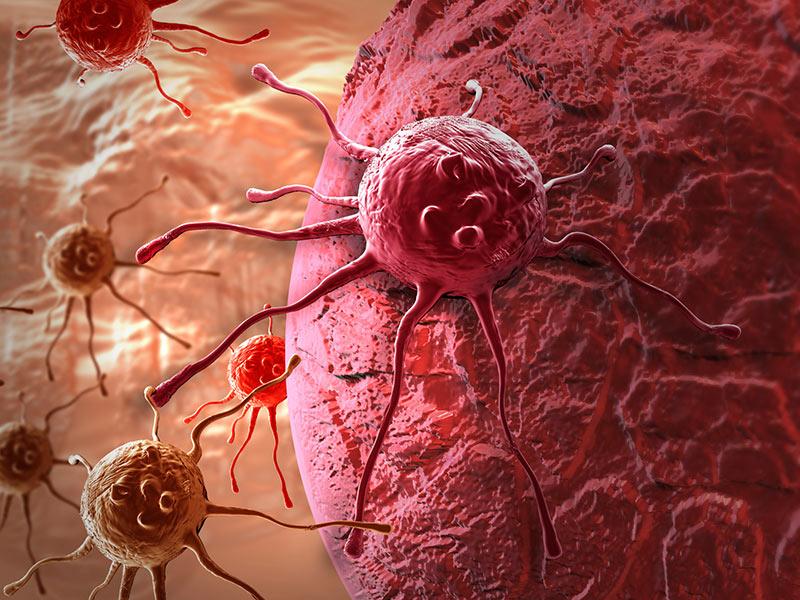 Các phương pháp điều trị ung thư biểu mô buồng trứng nguyên phát là gì?