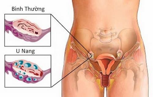 Các hạng mục kiểm tra khối u có nguồn gốc từ mô xơ buồng trứng là gì?