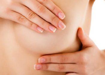 Hamartoma vú là gì? Những nguyên nhân và cách chữa trị