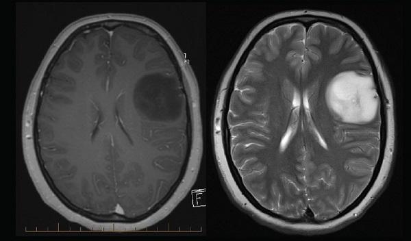 Các mục kiểm tra cho u thần kinh đệm thị giác là gì?