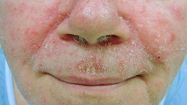 Các phương pháp điều trị bệnh dày sừng tiết bã nhờn là gì?