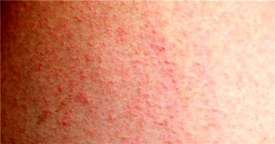 Các phương pháp điều trị bệnh nấm da đầu là gì?