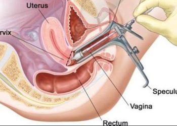 Bệnh Paget của Vulva là gì? Hướng dẫn điều trị bệnh đúng cách