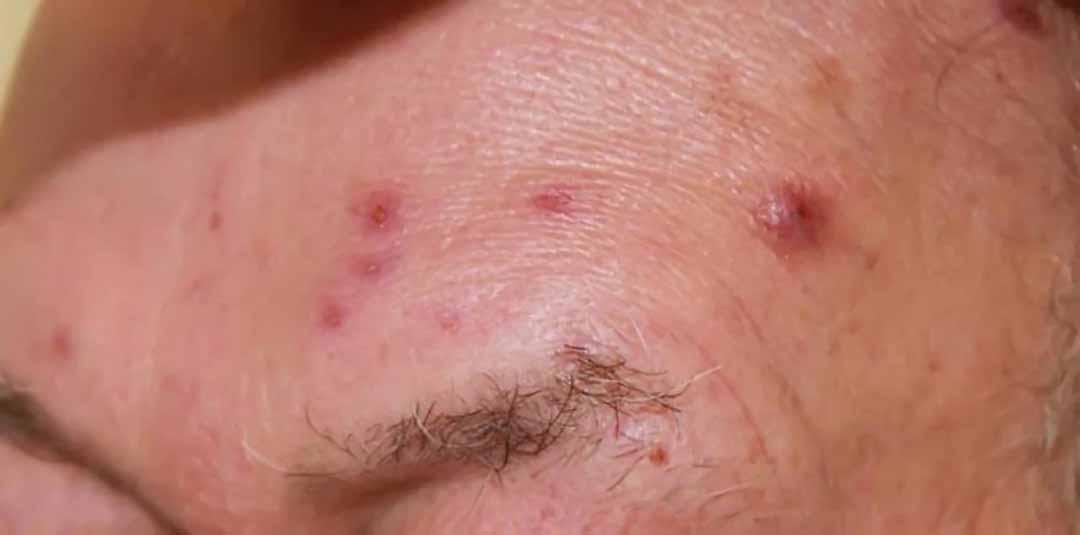 Các phương pháp điều trị bệnh sarcoidosis ở trẻ em là gì?