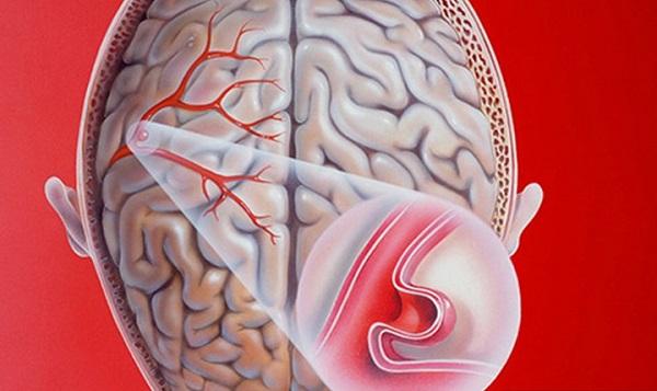 Các phương pháp điều trị chứng phình động mạch Chennai là gì?