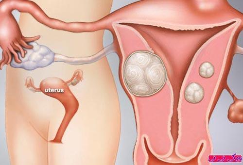 Các phương pháp điều trị khi mang thai bị u xơ tử cung phức tạp là gì?