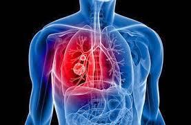 Các phương pháp điều trị khối u di căn phổi là gì?