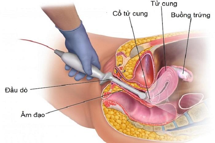 Các phương pháp điều trị khối u hỗn hợp Mullerian ác tính ở âm đạo là gì?