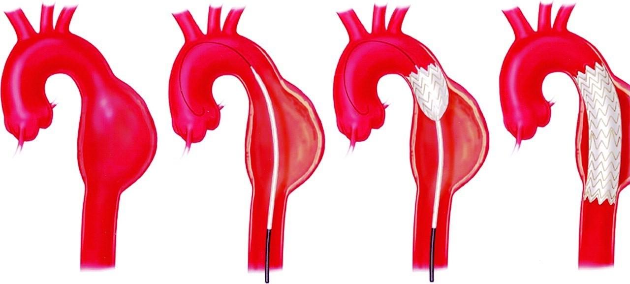 Các phương pháp điều trị phình tách động mạch chủ ngực là gì?
