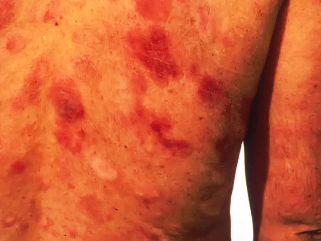 Các phương pháp điều trị sarcoma Kaposi là gì?