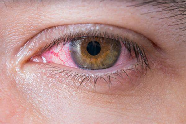 Các phương pháp điều trị u ác tính màng bồ đào là gì?