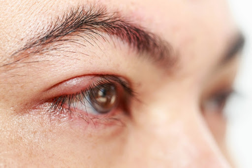 Các phương pháp điều trị u biểu mô tuyến bã là gì?