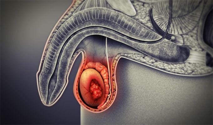Các phương pháp điều trị u hạch tinh hoàn là gì?