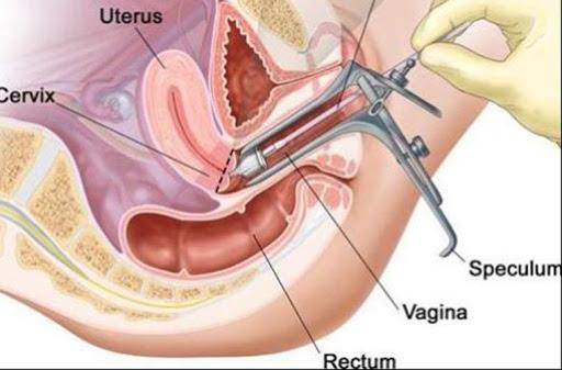 Các phương pháp điều trị u lympho âm đạo nguyên phát là gì?