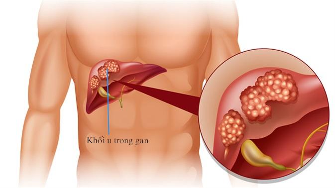 Các phương pháp điều trị u mạch gan là gì?