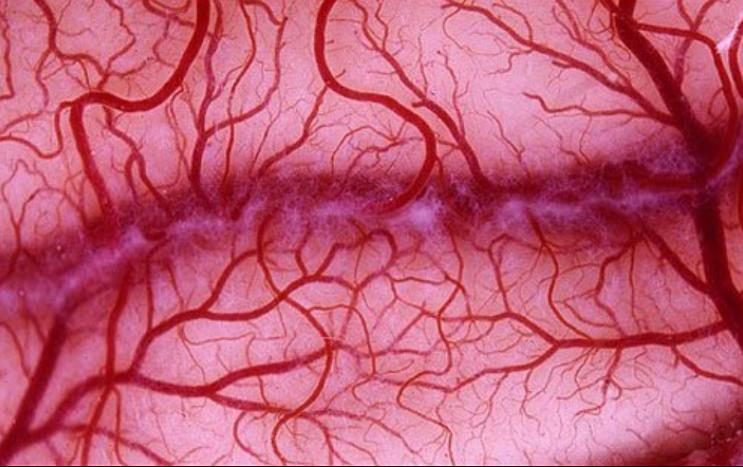 Các phương pháp điều trị u mạch máu biểu mô là gì?