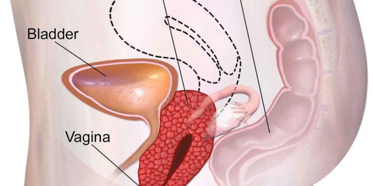 Các phương pháp điều trị u máu âm hộ là gì?