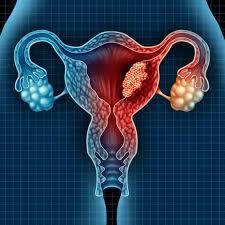 Các phương pháp điều trị u nang bạch huyết cổ tử cung là gì?