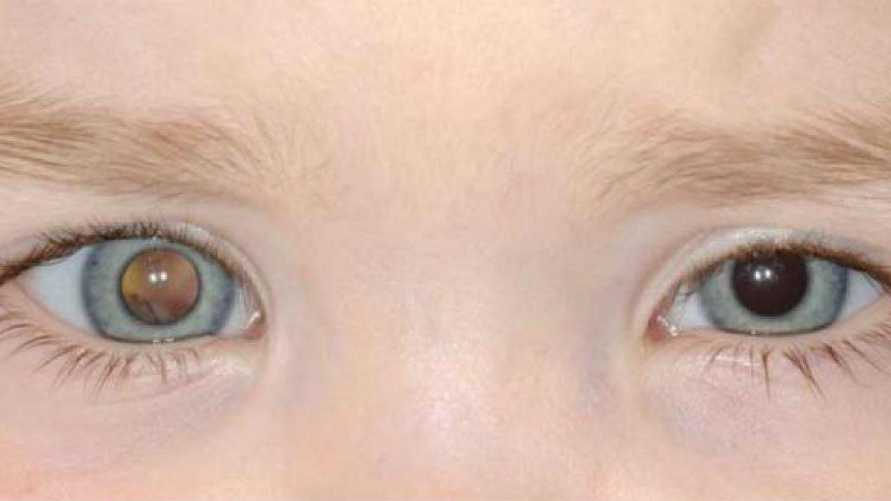 Các phương pháp điều trị u nguyên bào võng mạc ở trẻ em là gì?