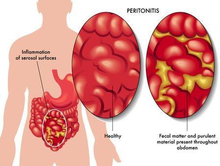 Các phương pháp điều trị u sau phúc mạc nguyên phát là gì?