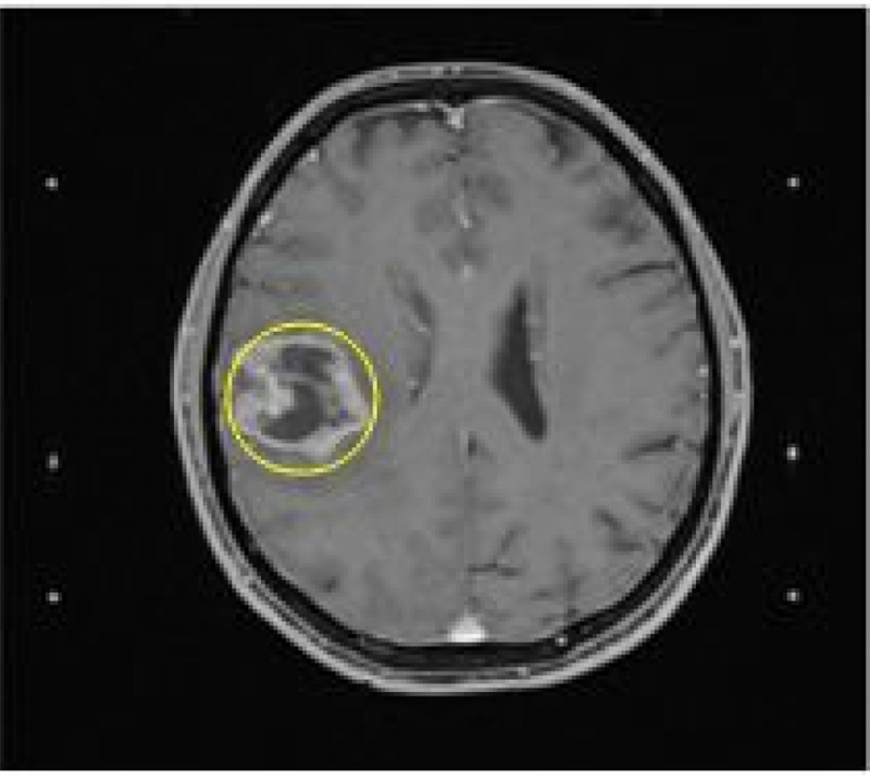 Các phương pháp điều trị u thần kinh đệm cầu não ở trẻ em là gì?