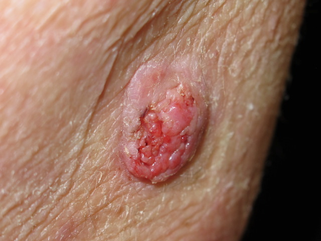 Các phương pháp điều trị ung thư biểu mô tế bào vảy âm đạo là gì?