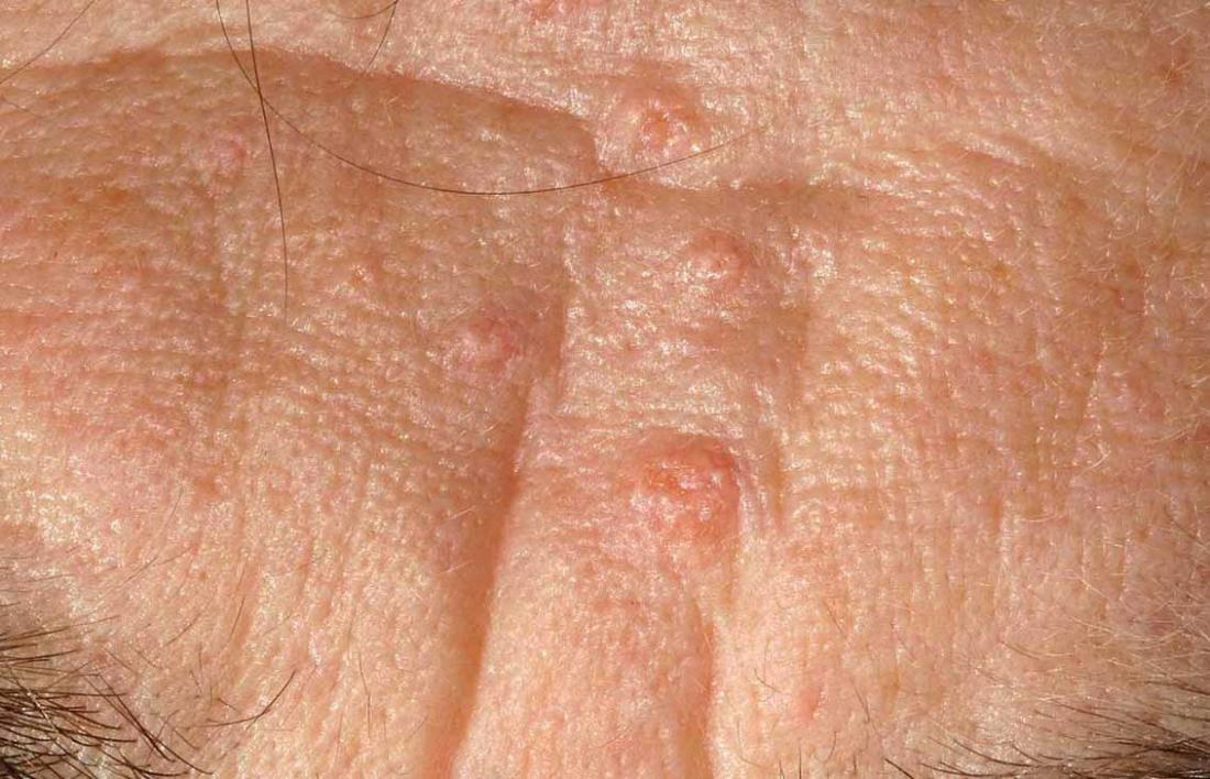 Các phương pháp điều trị ung thư biểu mô tuyến bã nhờn là gì?