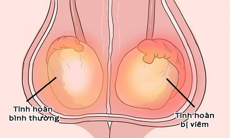 Các phương pháp điều trị ung thư viêm bìu là gì?