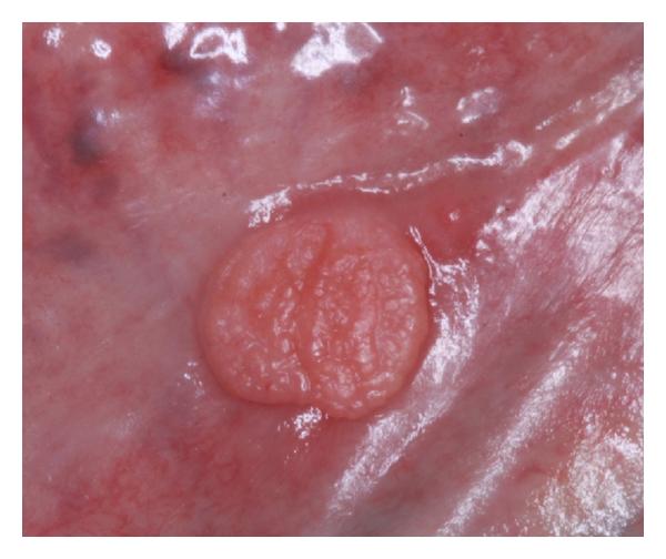 Các phương pháp điều trị verrucoxanthoma của âm hộ là gì?