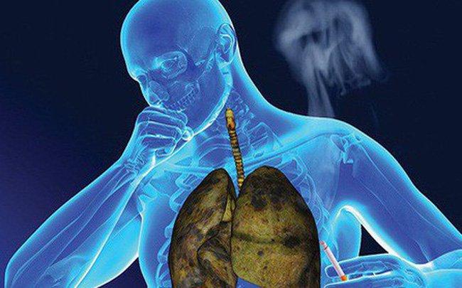 Các phương pháp điều trị viêm phổi bức xạ là gì?