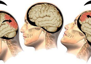 Các rối loạn tâm thần liên quan đến khối u nội sọ là gì?