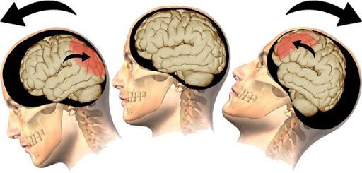 các rối loạn tâm thần liên quan đến khối u nội sọ