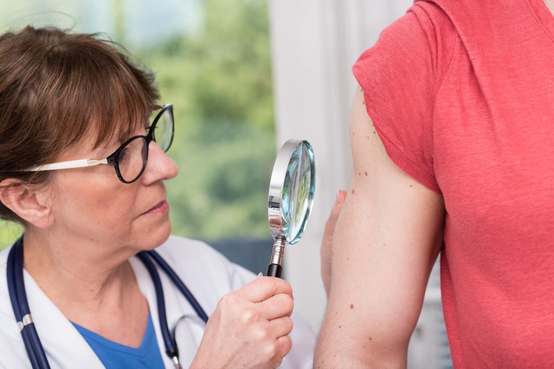 Các hạng mục kiểm tra cho bệnh u mạch là gì?