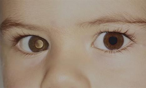 Các triệu chứng của bệnh u nguyên bào võng mạc ở trẻ em là gì?