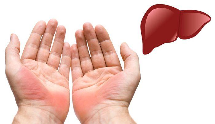 Các triệu chứng của bệnh u xơ dừa là gì?