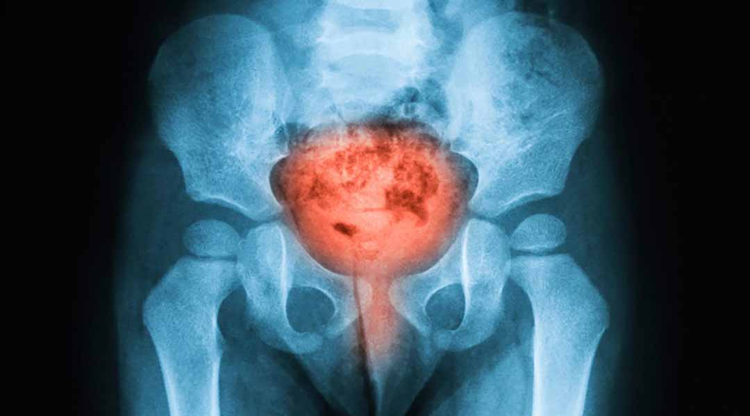 Các triệu chứng của bệnh ung thư bàng quang ở người già là gì?