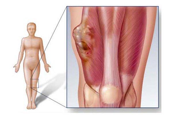 Các triệu chứng của chondrosarcoma trung tâm là gì?