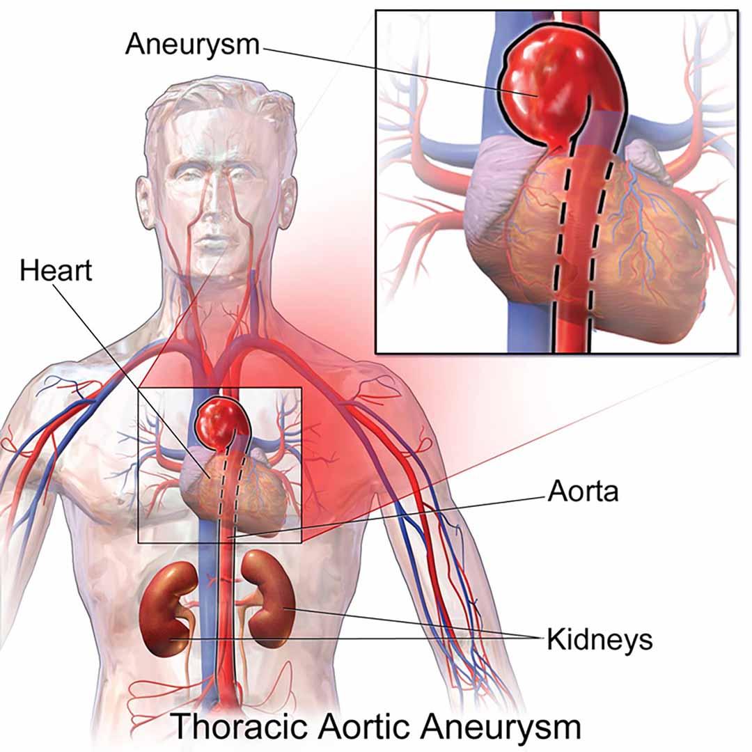 Các triệu chứng của chứng phình động mạch Chennai là gì?