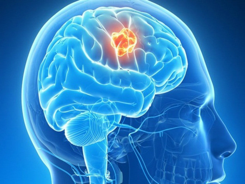 Các triệu chứng của khối u nội sọ là gì?