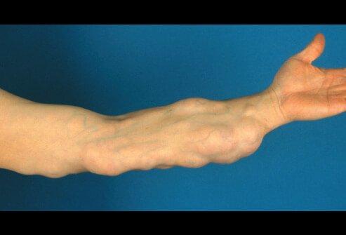 Các triệu chứng của lipoma là gì?
