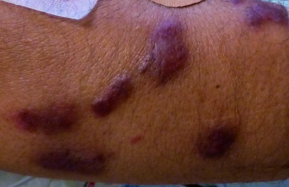 Các triệu chứng của sarcoma Kaposi của âm hộ là gì?