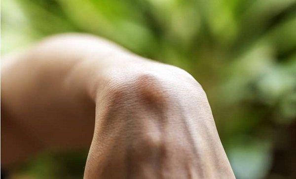 Các triệu chứng của sarcoma mô mềm là gì
