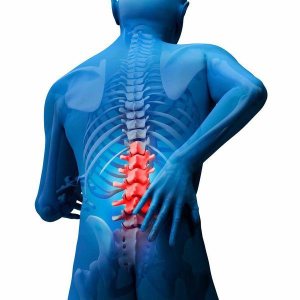 Các triệu chứng của u cột sống nguyên phát là gì?