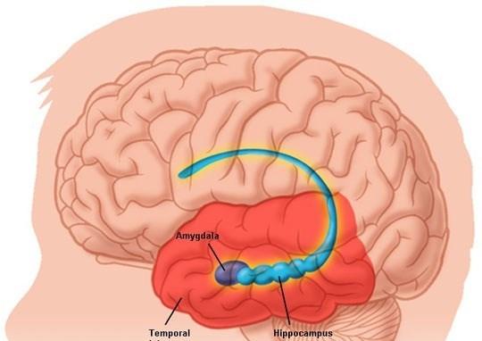 Các triệu chứng của u màng não ở trẻ em là gì?