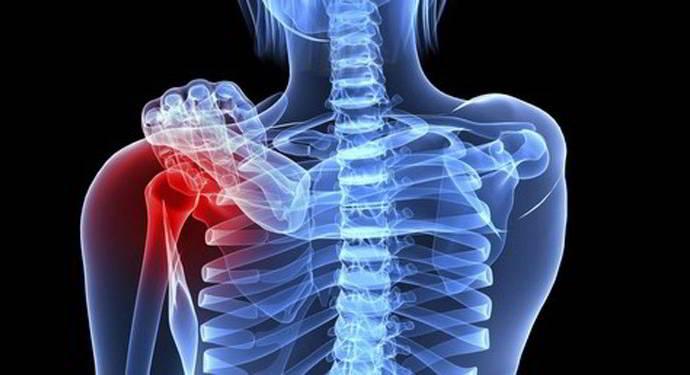 Các triệu chứng của u máu xương là gì?