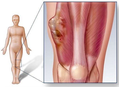 Các triệu chứng của u xương khớp là gì?