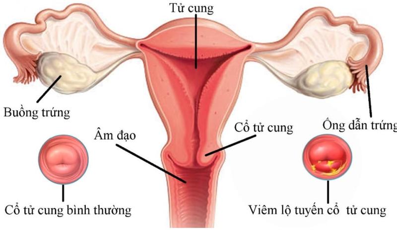 Các triệu chứng của ung thư biểu mô âm hộ là gì?