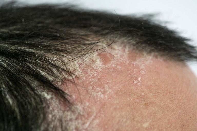 Các triệu chứng của ung thư biểu mô tế bào vảy ở đầu là gì?