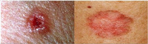 Các triệu chứng của ung thư biểu mô tuyến bã nhờn là gì?