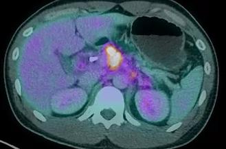 Các triệu chứng của ung thư biểu mô tuyến tụy là gì?